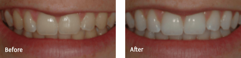 Tooth Whitening Gallery Image 02