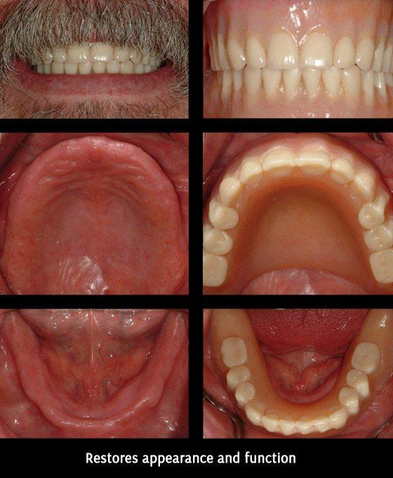 Complete Dentures Before After