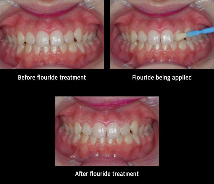 Fluoride Before After
