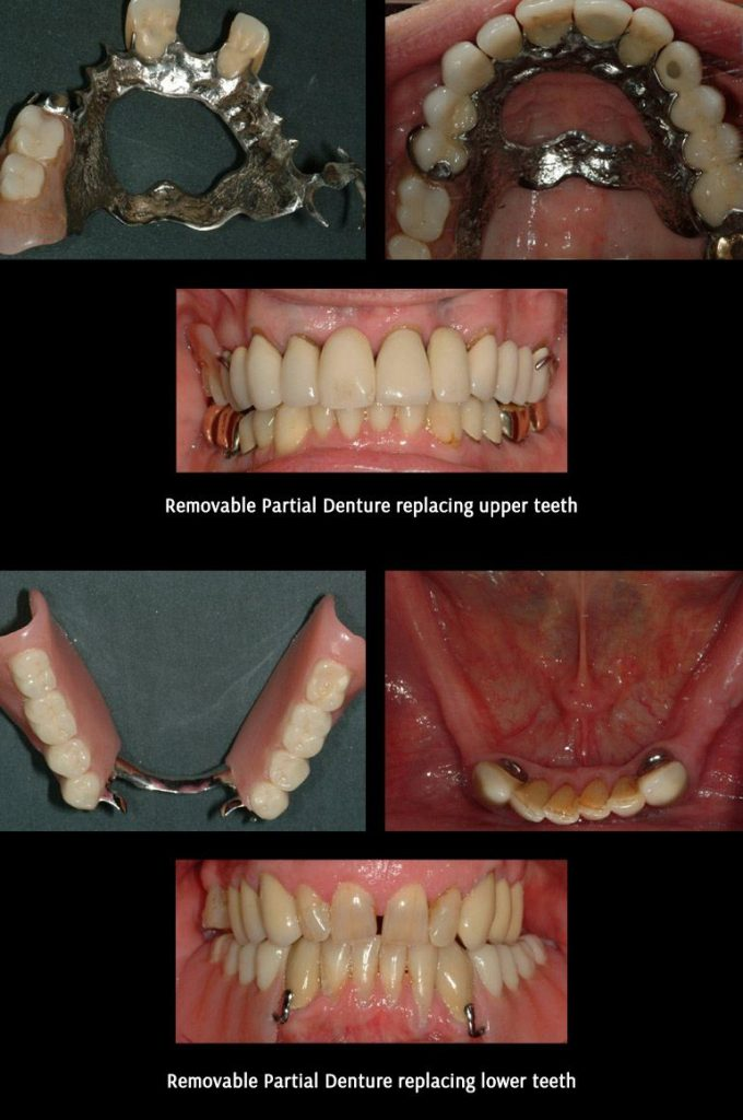 Removable Partial Denture Before After