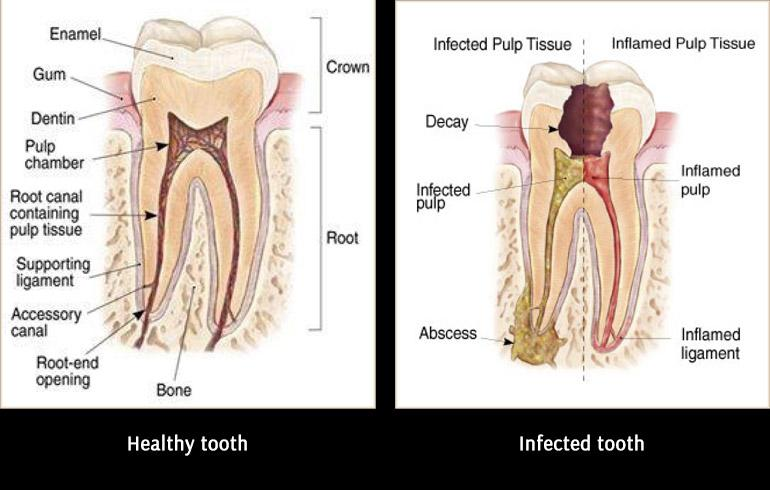 Root Canal Treatment Before After