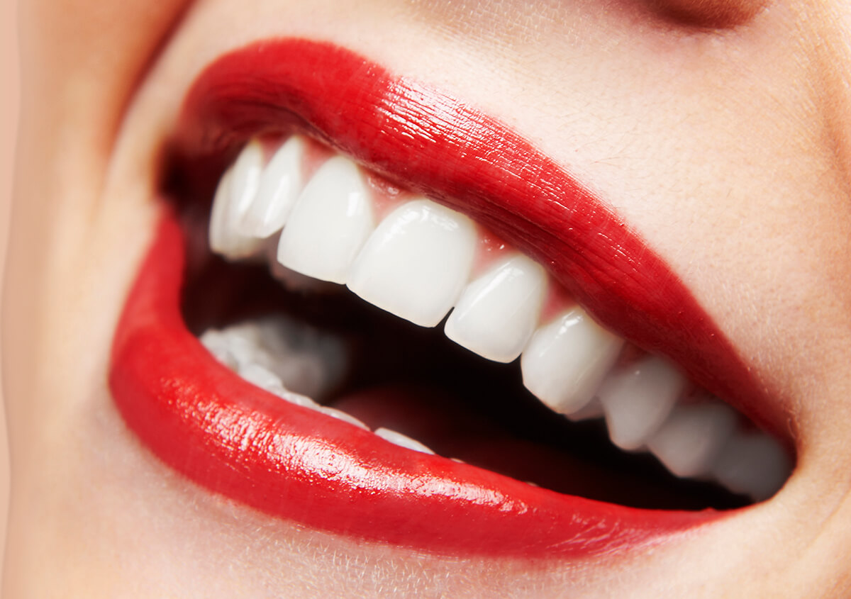 Common Questions Being Asked By Patients Looking For Professional Dental Whitening in Napier
