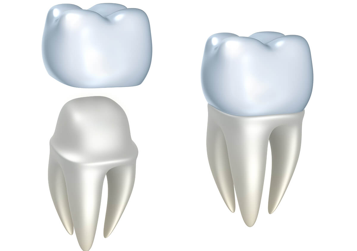 Patients in Napier Looking for Quality Dental Restoration Are Asking Questions About Dental Crowns for Teeth