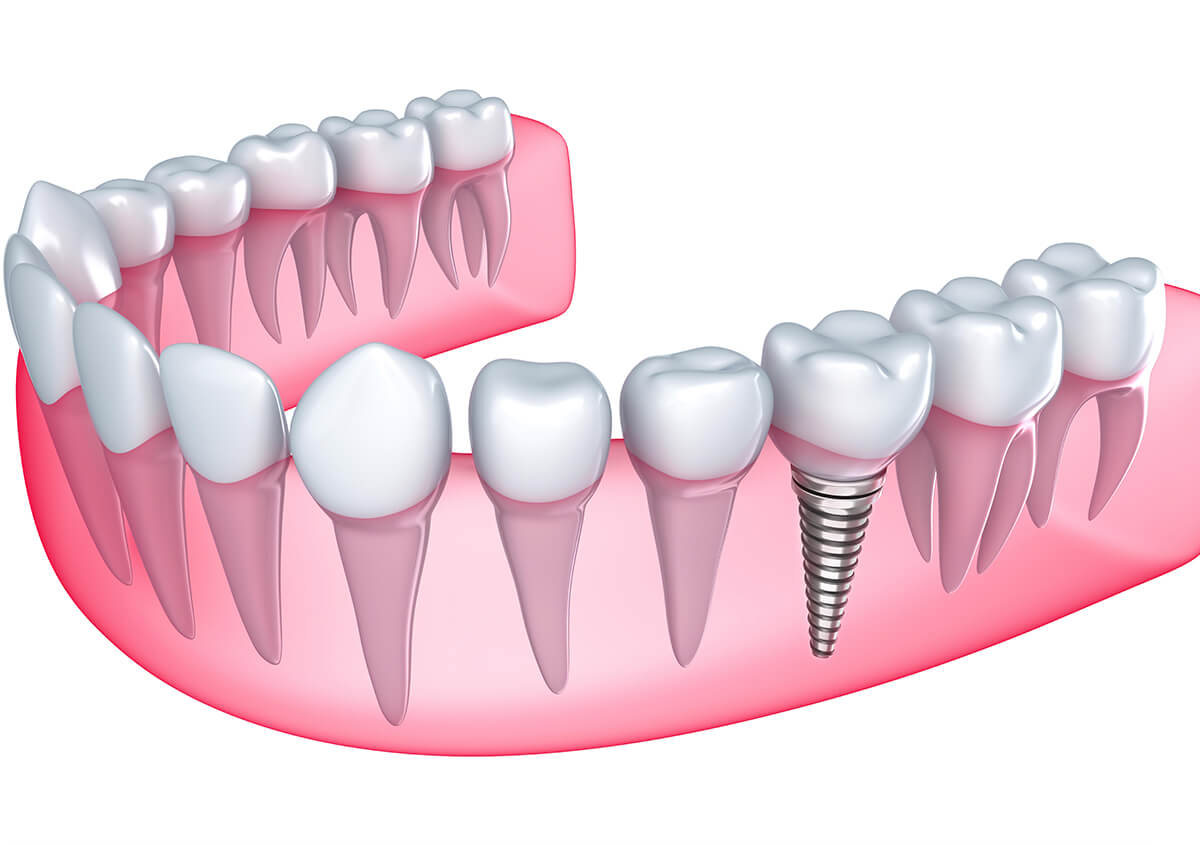 Patients in Greenmeadows, Napier and surrounding areas learn about the many benefits of dental implants